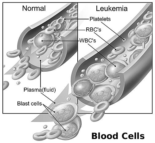 What are the different types of leukemia?