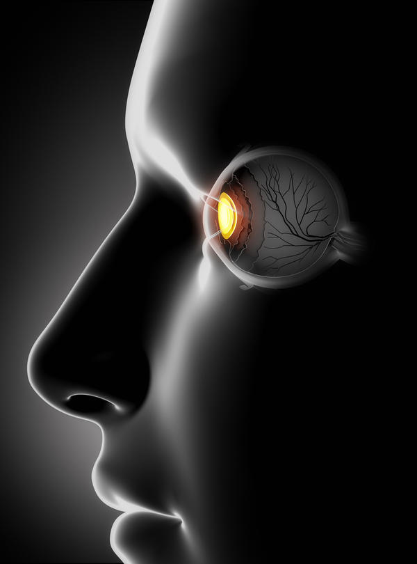Is there any type of eye exercise that is helpful following an eye corneal transplant surgery?