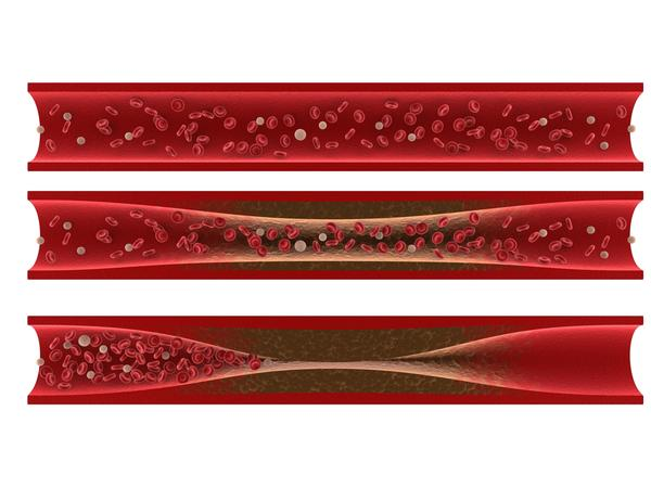 How dangerous is an angioplasty with stent?
