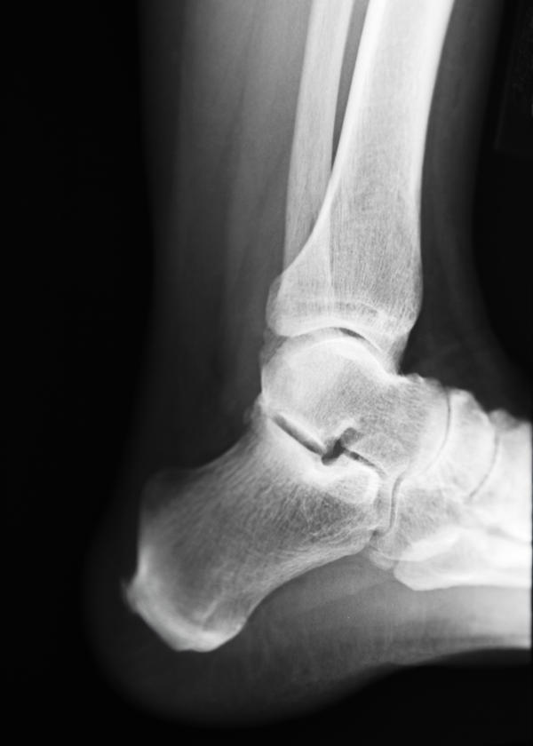 Ankle_arthroscopy