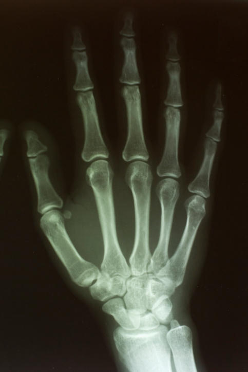 How long is the healing time for a fracture of the scaphoid bone in the wrist?