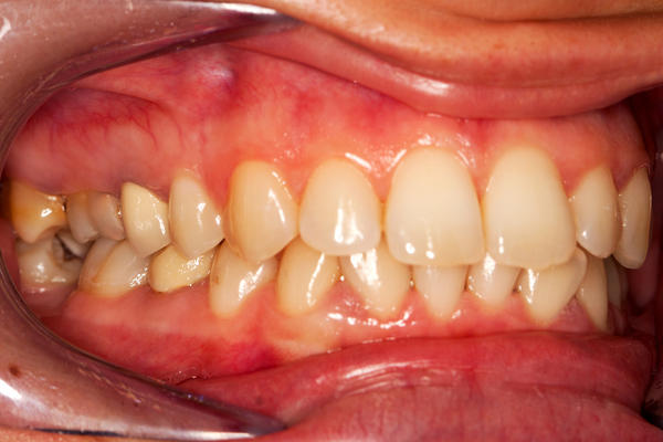 How can I do to whiten a tooth discoloration?