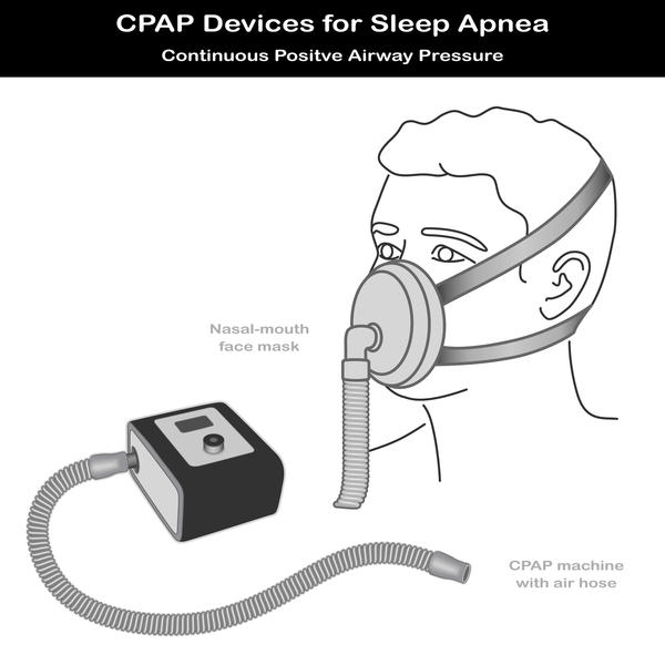 What is the difference between central sleep apnea and regular apnea?