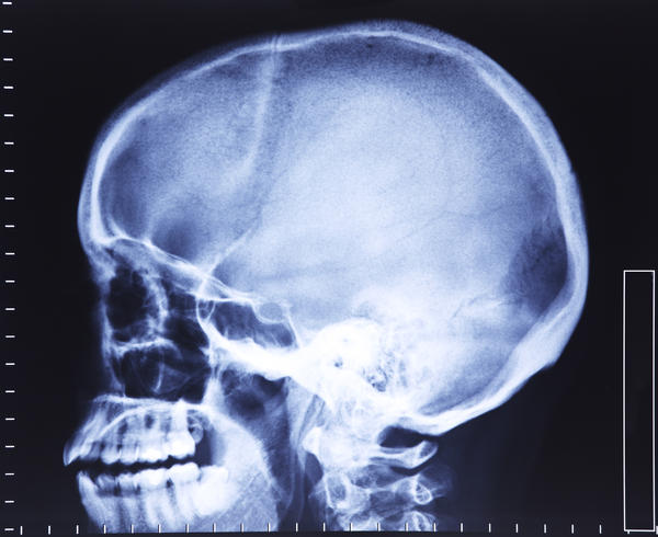 "I'm 51 years old. I felt a "" sunken"" area on top of my skull. I think its the anterior fontanel. is this bad? its ok to touch but continuously it hurt"