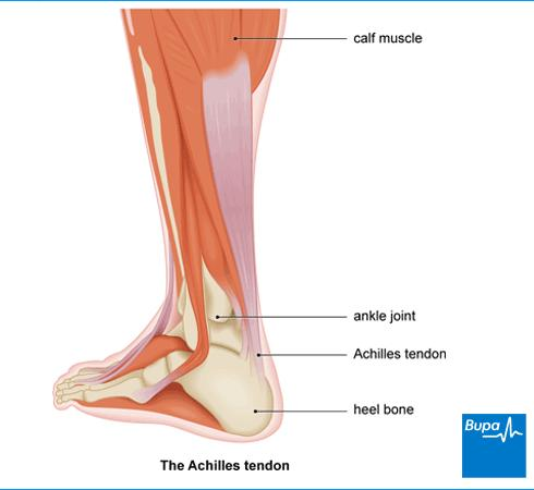 How far does the Achilles tendon ascend in the leg? What is a common diagnostic tool to diagnose injury/disease of the tendon that isn't ruptured?