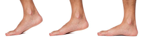 What is a medial ankle sprain?