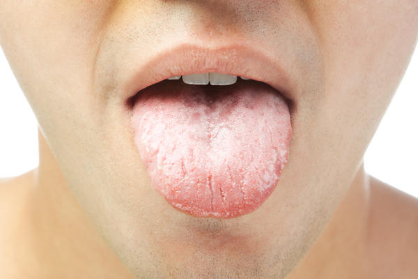 What cause your tip of your tongue sore with white bumps around the tip of your tongue?