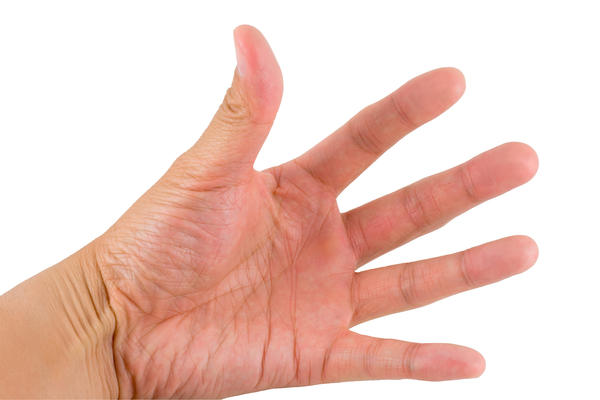 What is the best treatment for trigger thumb?