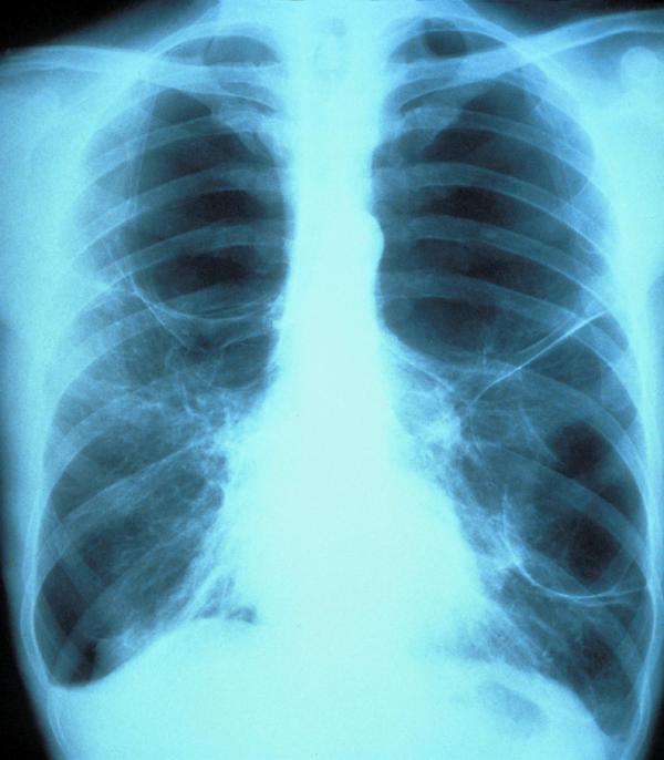 Age32, frmr smoker. Have shortness of breath& pain breathing in. Focal airspace disease on chest xray. No cough/fever. No response 2 antibiotcs. WWYD?