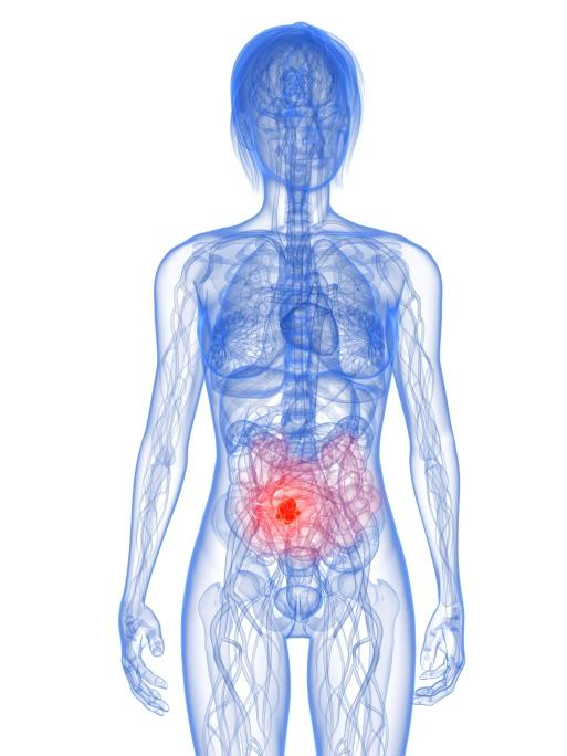 What are the symptoms of intestinal cancer?