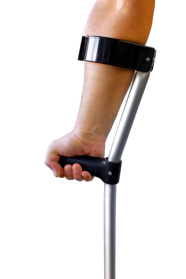 Will I need crutches for having a sprained knee and fluids in my ankle?