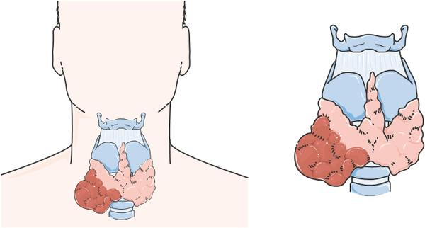 Can thyroid cancer cause unexplained enlarged hilar and mediastinal lymph nodes?