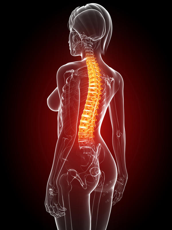 What is the best treatment for curvature of the spine?