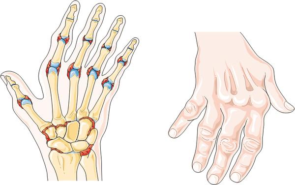 What does rheumatoid arthritis in the hands look like?