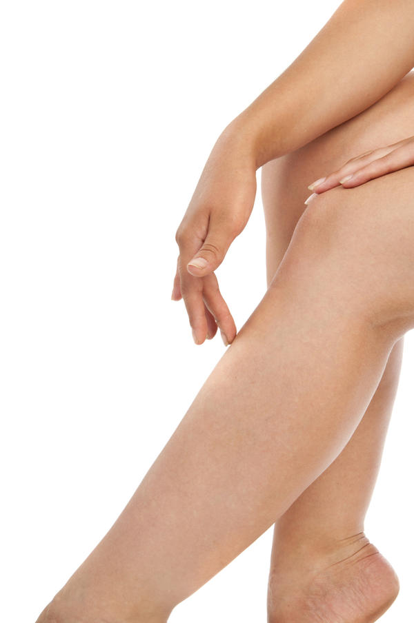 What is the definition or description of: leg swelling?