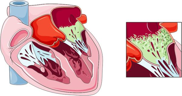 Why infective  endocarditis mostly  affect valves of the heart?