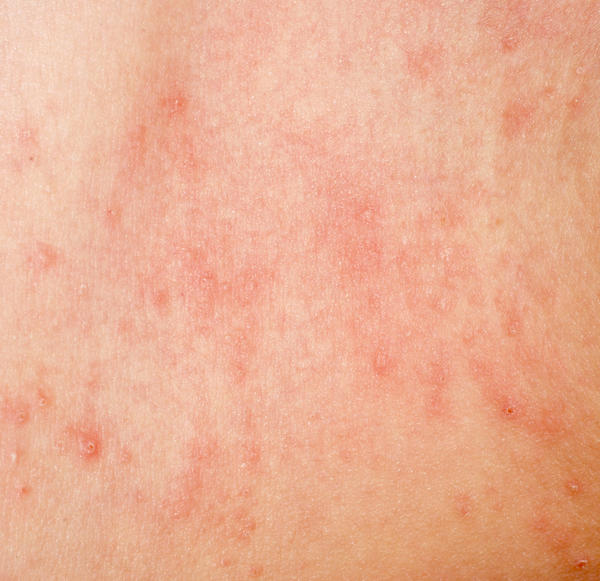 I have itchy, pink-red, inflammed rashes in my back,front,legs,arms,feet top,hands,palms. Also I have a hairloss that is not patchy. What is it? Thnks