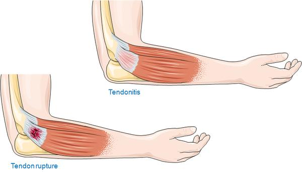 What are the signs of having tendinitis?
