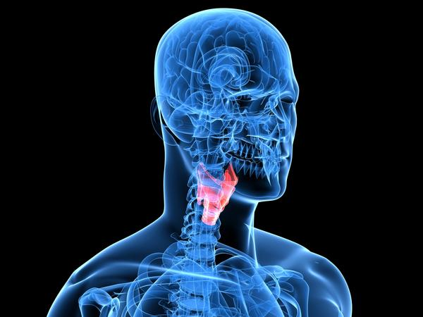 I am experiencing thyroid enlargement. The following also describe me: Neck lump or bulge, Hoarse voice, and Cough. What should I do? T4 results 4.32 and TSH 0.006.