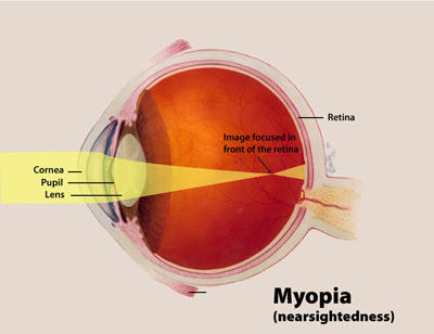 How can our eyes see things and what has happened to your eyes if you are nearsighted?