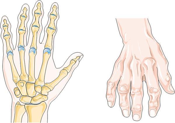 Ra Symptoms Vs Oa Symptoms - Doctor answers on HealthTap