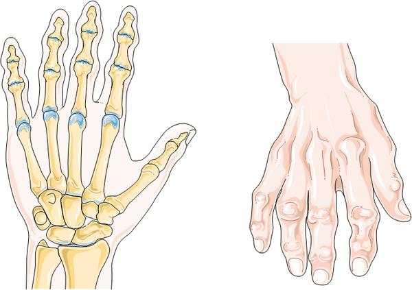 What is the best treatment for osteoarthritis in lower back and thumbs?