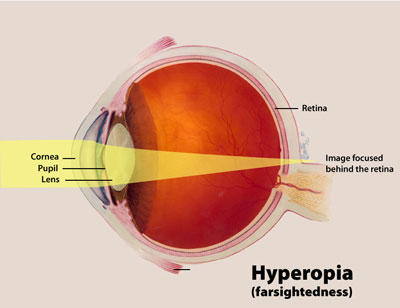 What are some symptoms of farsightedness?