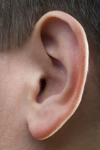 Swollen Lymph Nodes Behind Ear Children