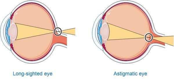 How do you diagnose an astigmatism?