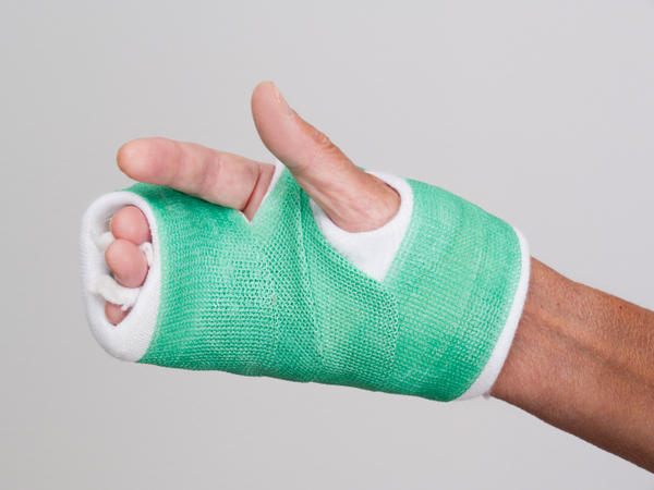 If I have an acute fracture in my index finger and a broken hand will I have a cast or splint?