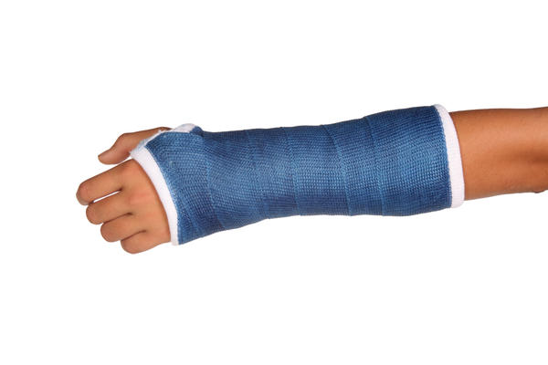 What are the differences between a broken, sprain, and fractured arm?