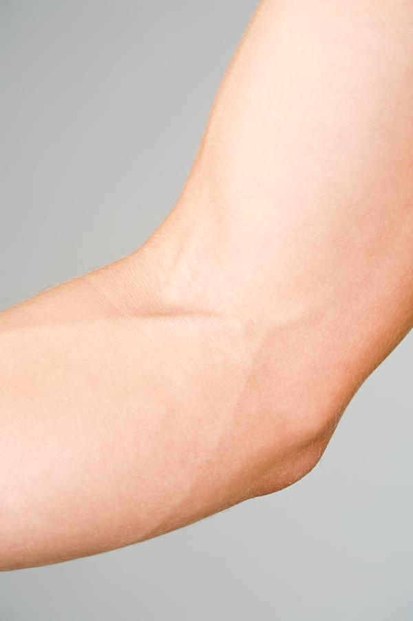 Could putting ice on your vein hurt you?