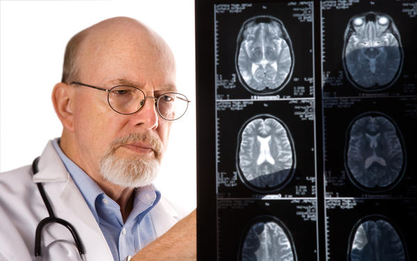 What are the warning signs of stroke?