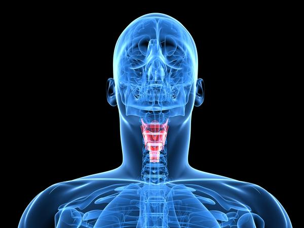 What are the TSH hormone values in severe hypothyroidism?