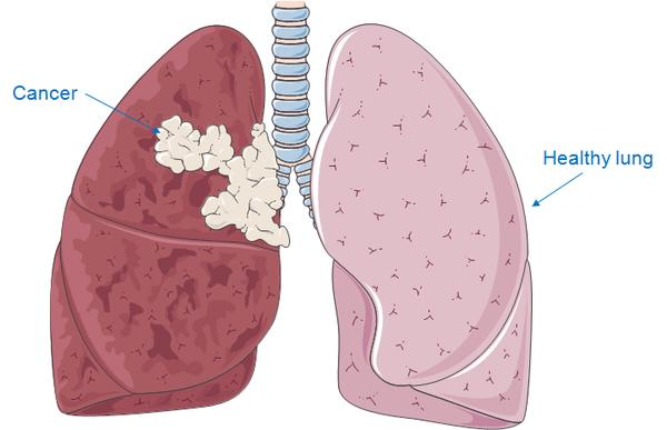 What is the prognosis for lung cancer with a lesion in the brain?