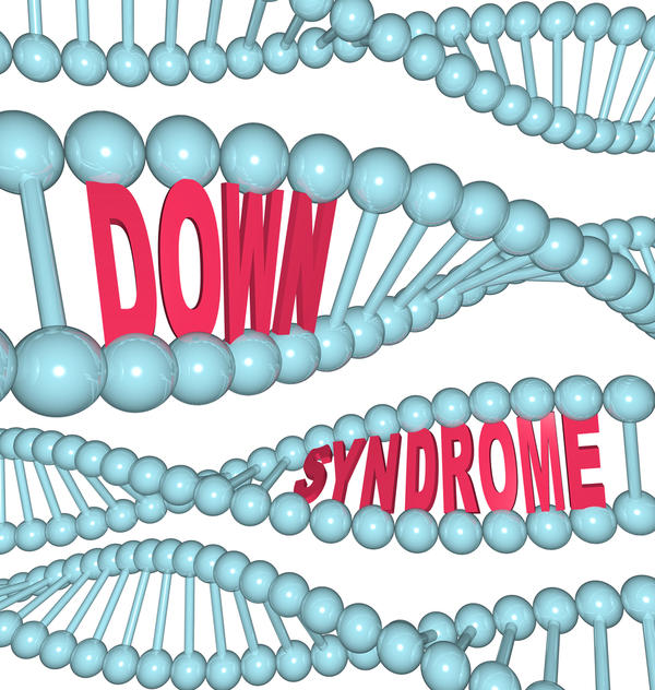 Is Down syndrome dominant or recessive?
