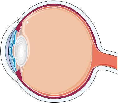 How can cataract occurs in thin retina and what are its symptoms?
