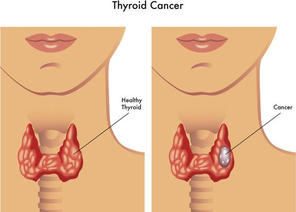 Hello i recently found a lump on my neck i went for ultra sound and it confermed a thyroid nodule  size 2cm by 3 CM non cystic  and hypervascular  ?