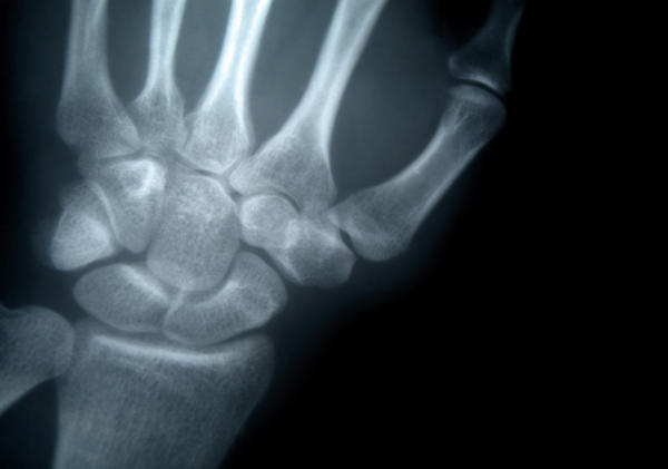 Can I have a wrist X-ray at the age of 17 after puberty for height growth ?