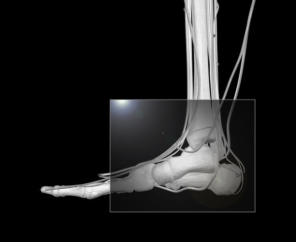Is prolotherapy a viable treatment option for stage 4 arthritis in the ankle joint?