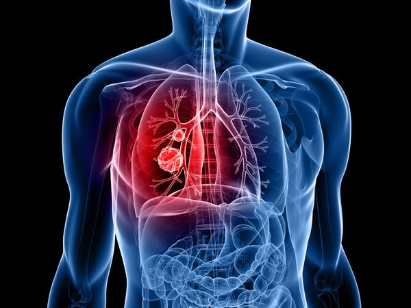 What is a 7 mm noncalcified lung nodule?