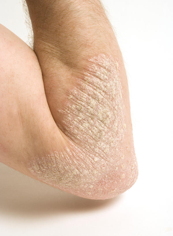 How can you tell if you have eczema as an adult?
