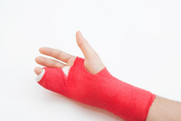 What is the best cast for broken pinky fingerBroken Index Finger Cast