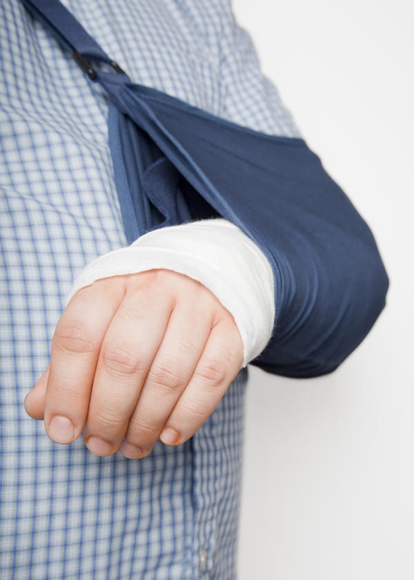 How long is it safe to leave a broken arm unattended for?