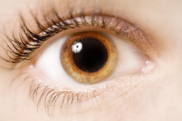 What does anisocoria look like?