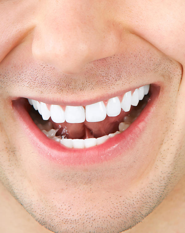 What can cause teeth to turn black in between them at the gum lines?