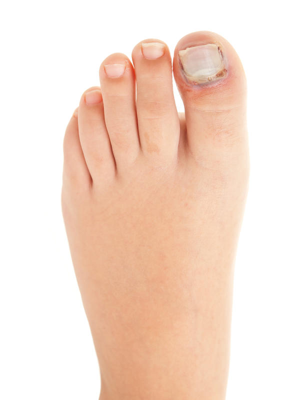 I got my baby toe on a wall and I was running There was blood & it is really sore in the joint I can walk on it but it is swallen. what might be wrong?