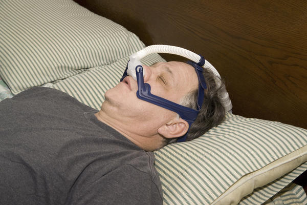 Could sleep apnea go away without treatment?