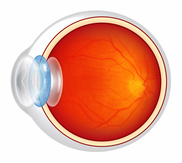 How do physicians treat a minor eye infection?