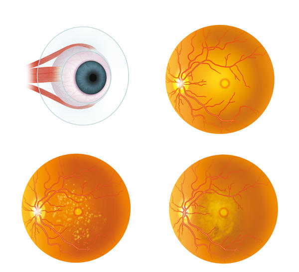 How does silicone oil left in my eye after detached retina surgery affect my sight?